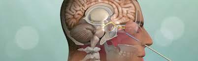 Endoscopic - Skull base surgery