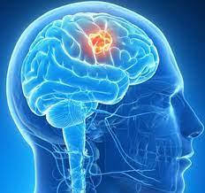 Neurovascular